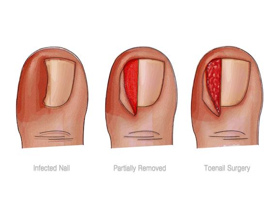 Causas, síntomas y tratamientos para uñas encarnadas o uñeros