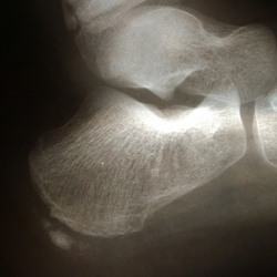 Tobillo radiografia