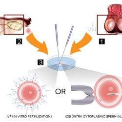 Proceso de fertilización in vitro