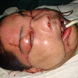 Segundo transplante de cara en el mundo