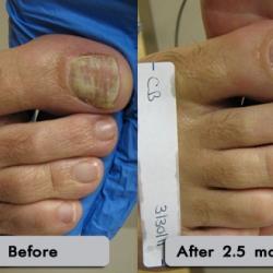 Onychomycosis: Hongo en las uñas.