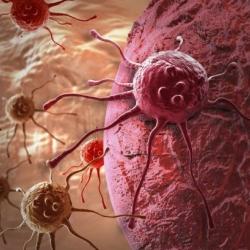 5 mitos comunes sobre el cáncer