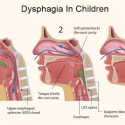 Disfagia en niños