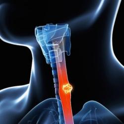 5 consejos para prevenir el cáncer de esófago