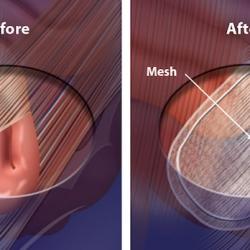 Cirugía de hernia con colocación de malla