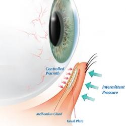 Tratamiento LipiFlow para el sindrome de ojo seco