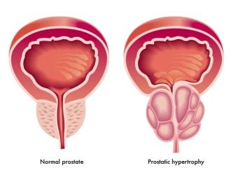 5 consejos para cómo prevenir el cáncer de próstata